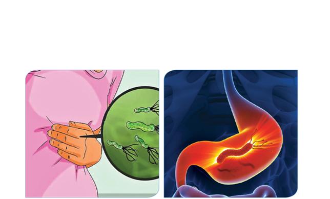 الميكروب الحلزونى أسبابه أعراضه علاجه