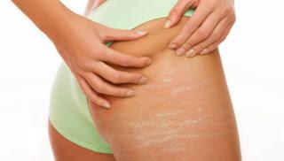 الشقوق الجلدية للحامل
