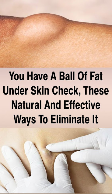 You Have A Ball Of Fat Under Skin Check These Natural And Effective Ways To Eliminate It