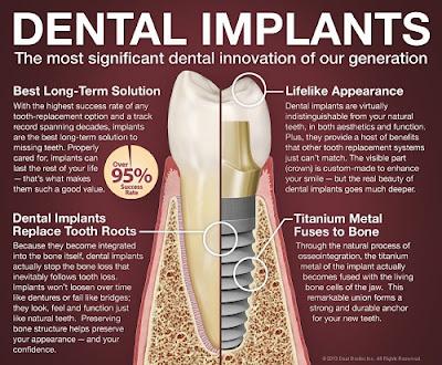 tư vấn cấy ghép răng implant -1
