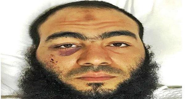 حبس مواطن مصرى فى الكويت بتهمة الاصطدام بسيارة امريكية