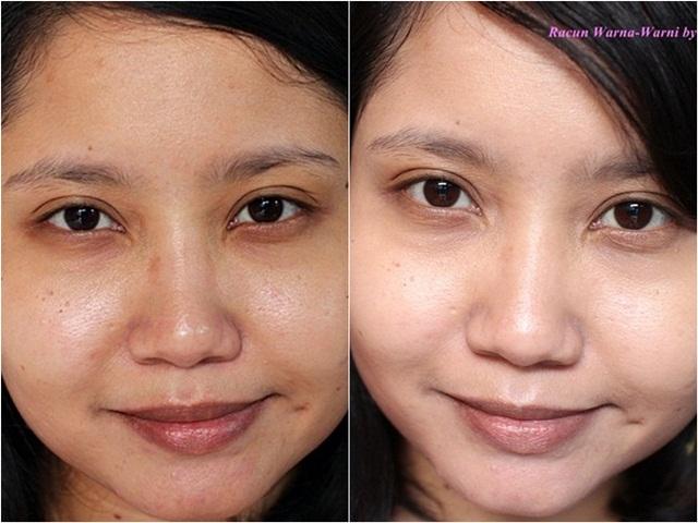 Perbedaan Muka Sebelum dan Setelah