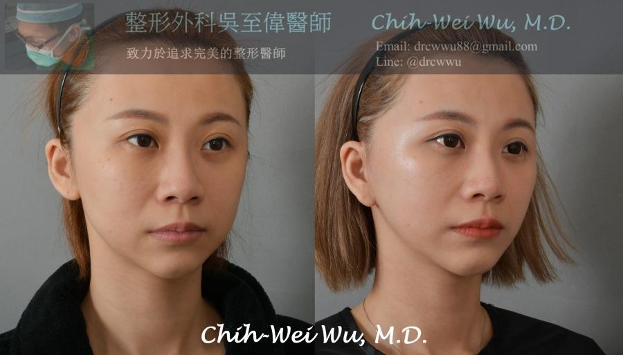 2020年7月最新拉皮手術案例:中下臉筋膜拉皮+頸部拉皮。此案例為30-35歲,經筋膜拉皮手術後,可以見到嘴邊肉改善明顯,下巴輪廓線的線條緊實許多,整體變得V臉許多,且非常年輕側底擺脫老態