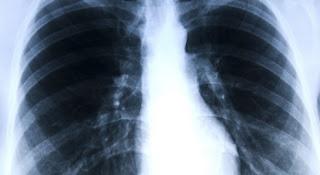 Dokter Spesialis Radiologi Bogor