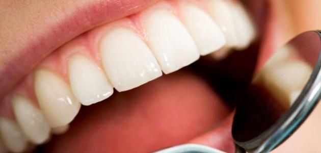 علاج تسوس الاسنان عند الطبيب