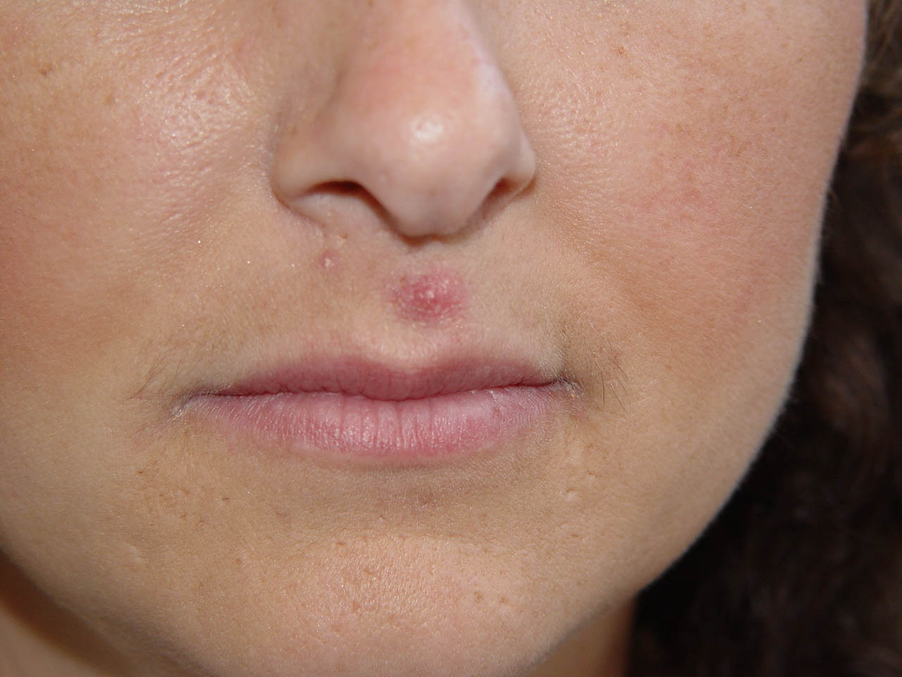Adult Cystic Acne Chin