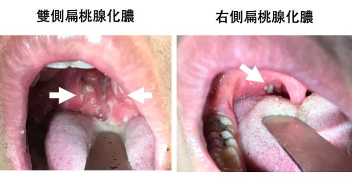 切除 扁桃 腺