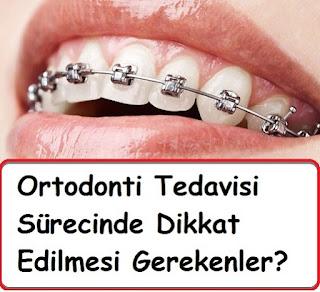 Ortodonti Tedavisi Sürecinde Dikkat Edilmesi Gerekenler