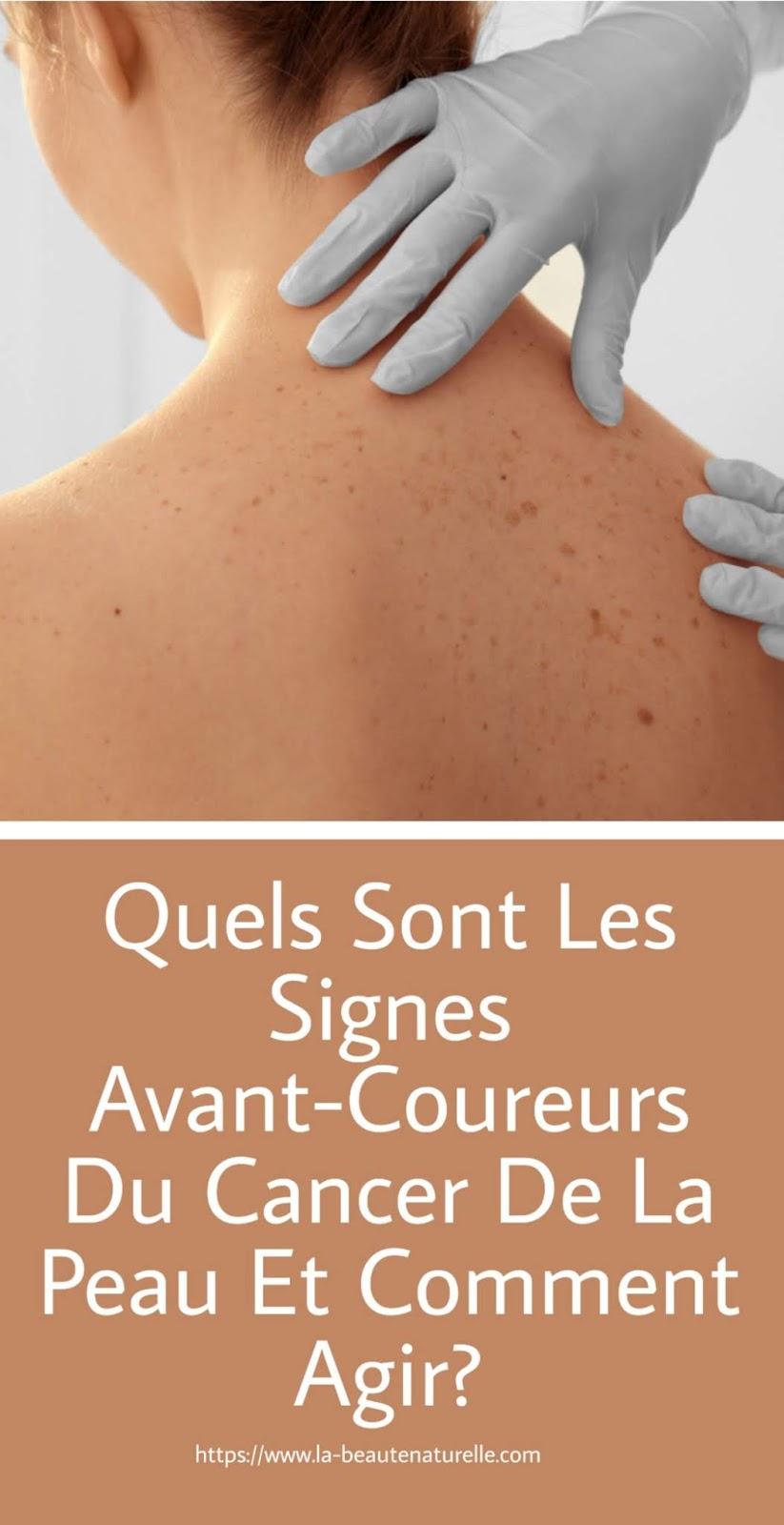 Quels Sont Les Signes Avant-Coureurs Du Cancer De La Peau Et Comment Agir?