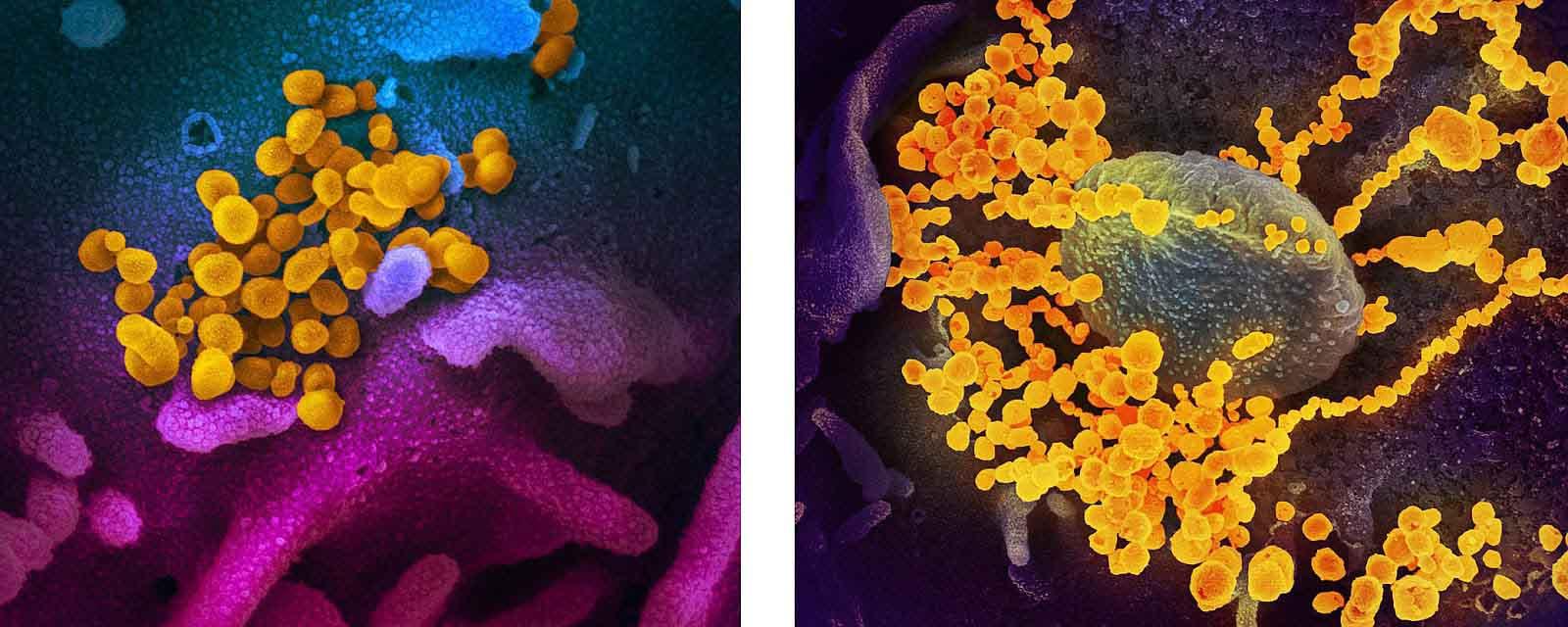 Коронавирус SARS-CoV-2 под микроскопом