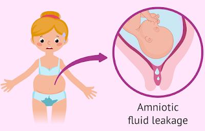 Différences entre les pertes vaginales et le liquide amniotique