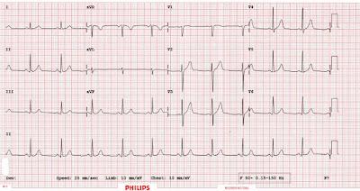 EKG Adalah