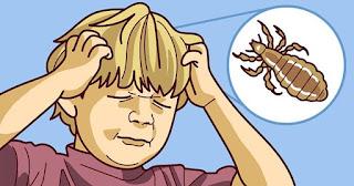 Secret pour éliminer les poux de tête rapide et bon marché