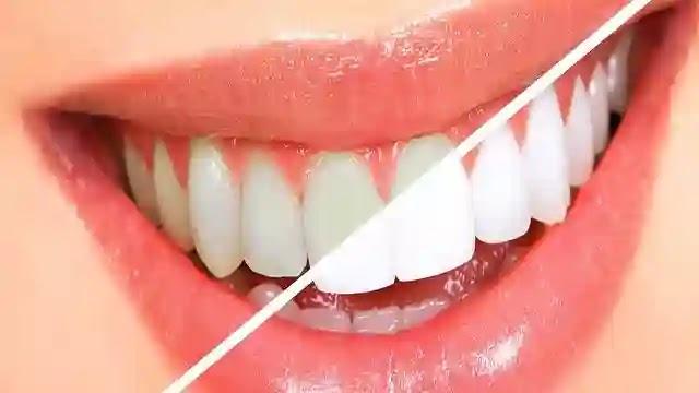 طريقة تبييض الأسنان بالمنزل مع  الحفاظ على مينا  الأسنان .