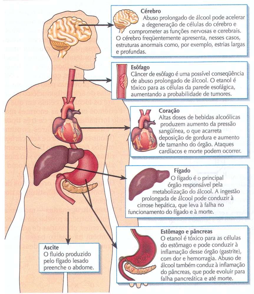 Sintomas de doenças de um fígado em alcoolismo