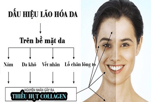Những nguyên nhân dẫn đến tình trạng suy giảm Collagen.