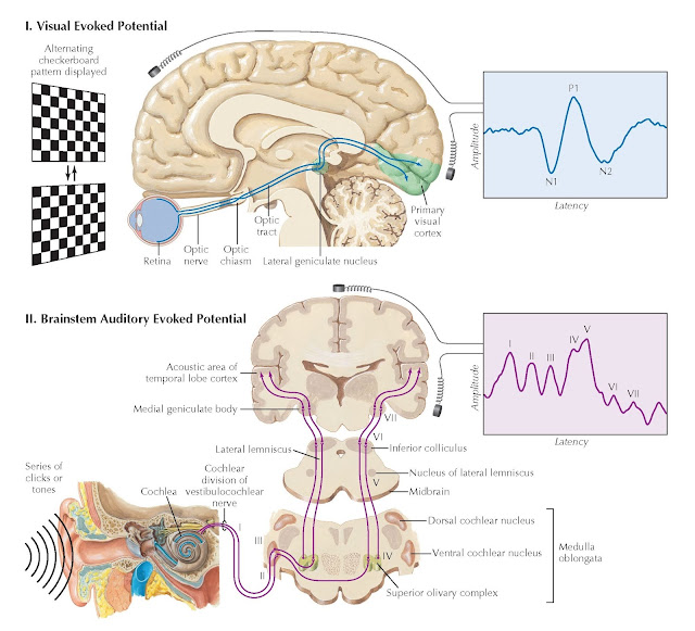 VISUAL AND AUDITORY EVOKED POTENTIALS