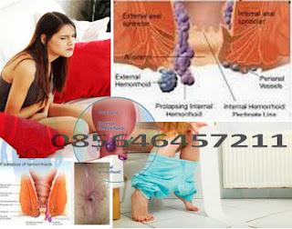 Obat Wasir (Hemoroid) Yg Bisa Untuk Semua Umur