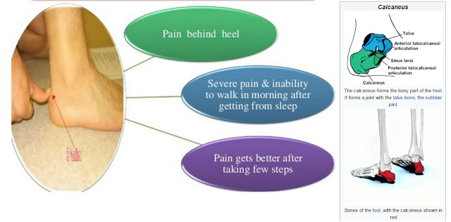 Best Back Of Heel Pain Treatment