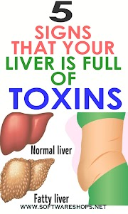 5 Signs That Your Liver is Full of Toxins