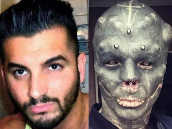 Hombre se opera para poder verse como un Alien