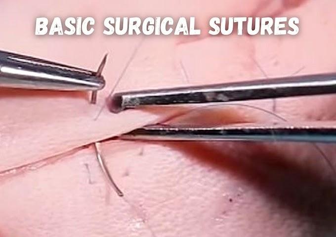 ORAL SURGERY: Basic surgical sutures - Paweł Sawicki, DDS