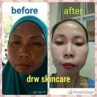 drw skincare Cikarang