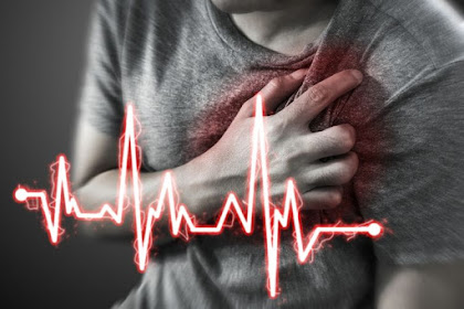 Viral Video Tolong Penderita Serangan Jantung dengan Menepuk, Benarkah Cara Ini?