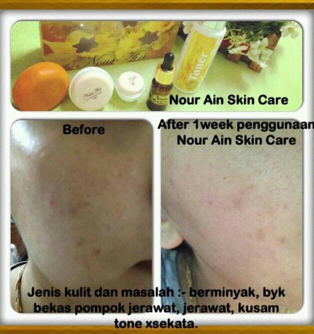 Skin Care Penghilang Jerawat: NOUR AIN BEAUTY: Testimoni Panas2 Lg..dengan Pemakaian Set