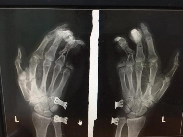 Vừa chơi game vừa sạc pin, điện thoại iPhone phát nổ, nam thanh niên dập nát bàn tay