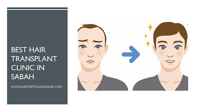 hair transplant sabah