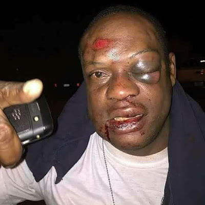 Man Receive Beating For Sleeping With Another Man's Wife