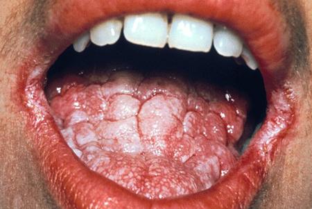 rashes tongue Itchy anus sore on