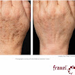 Treating Age Spots with Fraxel