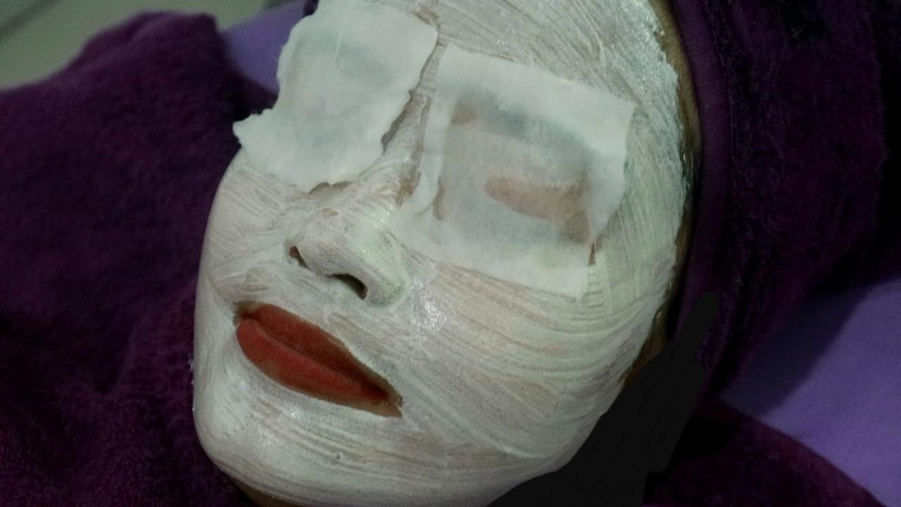 Pengalaman facial diamond peel di lineation bandung, facial hydra dan microdermasi
