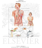mbah+dukun+typhoid+fever - Supplement Your Income With The Help Of Making Money Online
