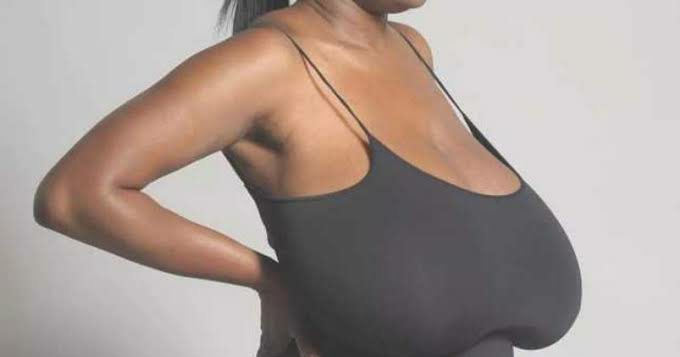 Welcome To Ladun Liadis Blog Breast Implants Will Not -8788