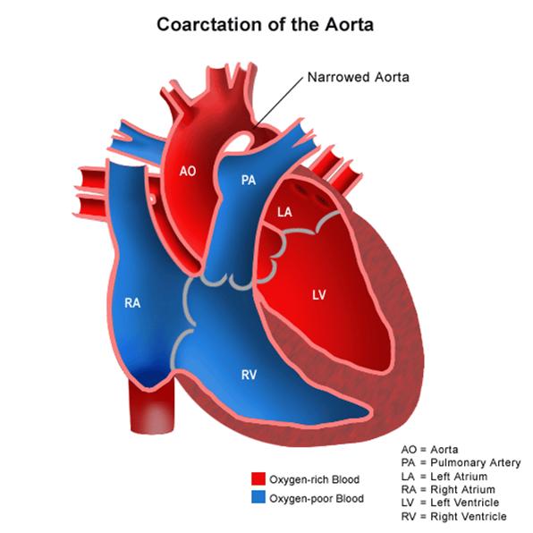Coarctation of aorta Disease& Facts
