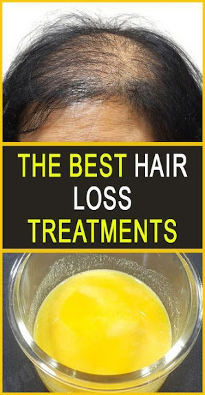 The Best Hair Loss Treatments