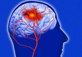 Beyin Damarlarında Daralma Belirtileri Tedavisi