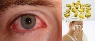 remedios naturales para conjuntivitis
