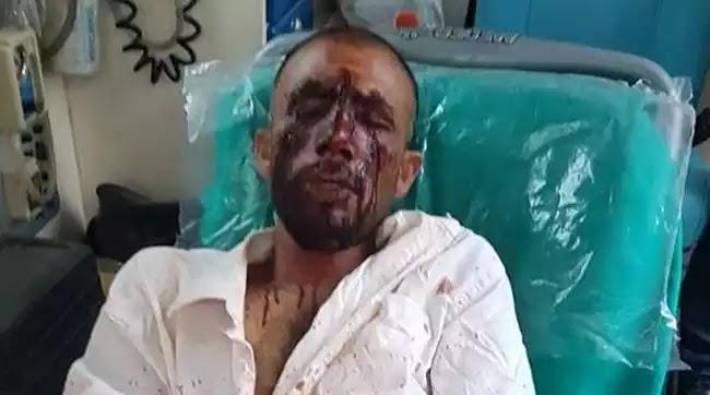 Αποδείχθηκε η συκοφαντία κατά της Χρυσής Αυγής με την ταυτοποίηση των δραστών στον Ασπρόπυργο – Σιγή ιχθύος από τα διαπλεκόμενα ΜΜΕ