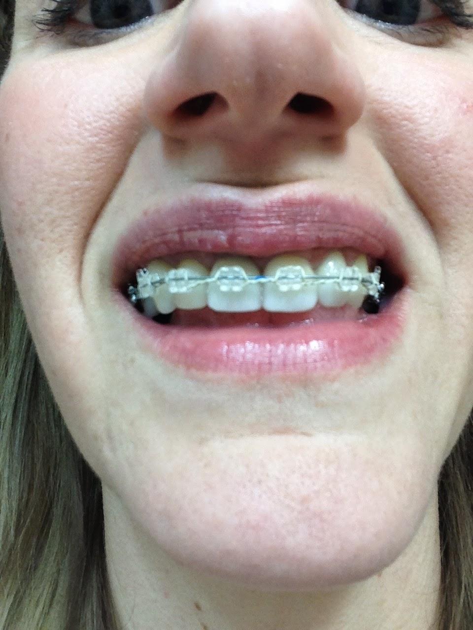My Broken Jaw Trauma: First Wire Change And No Elastics
