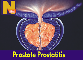 prostate prostatitis