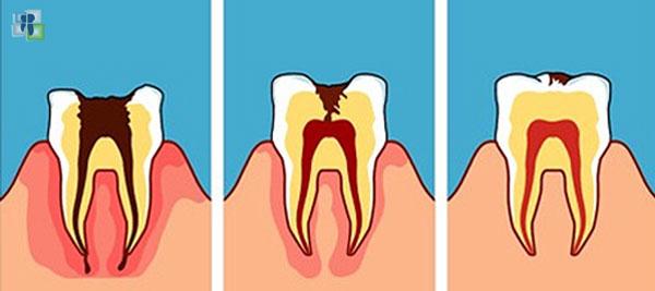 أمراض لب الأسنان وتشخيصها