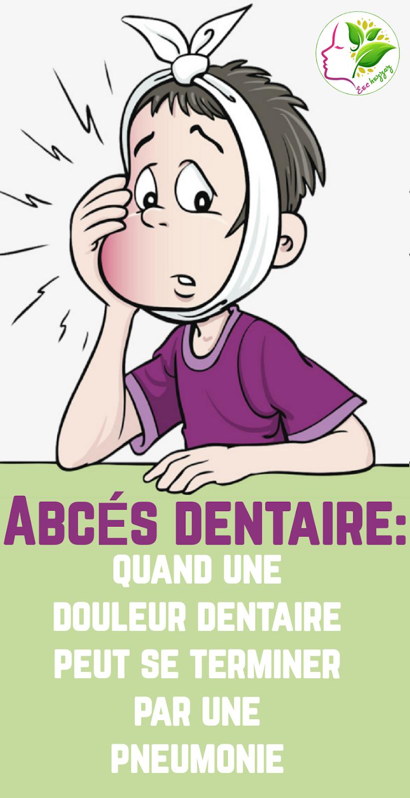 Abcès dentaire: quand une douleur dentaire peut se terminer par une pneumonie
