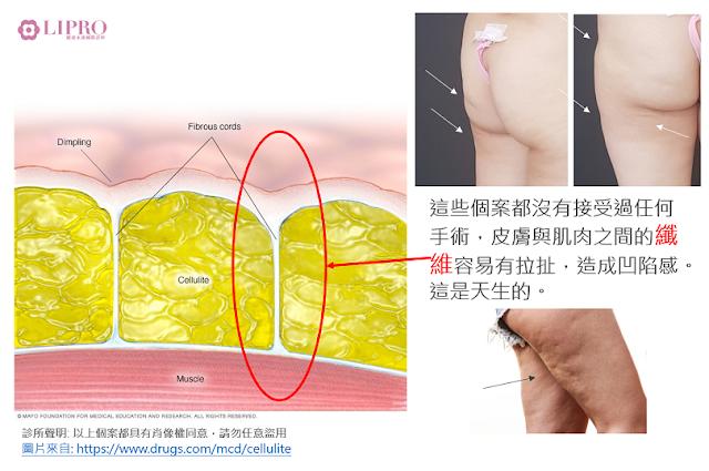 抽脂凹凸不平  抽脂凹凸不平補救 抽脂凹凸不平怎麼補救 抽脂後遺症 抽脂失敗 抽脂恢復期