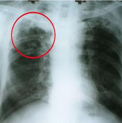 Gejala, Faktor Penyebab dan Pengobatan Penyakit TBC