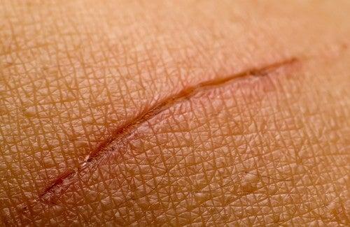 Phương pháp tự nhiên hỗ trợ điều trị sẹo