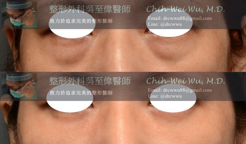 2020年9月最新眼袋手術案例,內開無痕眼袋手術+自體脂肪填補淚溝,眼袋手術推薦權威